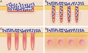 Distintos tipos de láseres empleados en la vehiculización de fármacos asistida por láser. A) Láseres totalmente ablativos: CO2 (10.600nm) y Er:YAG (2.940nm) principalmente; realizan una ablación total, no fraccionada, de la epidermis, permitiendo a las moléculas alcanzar la dermis. B) Láseres fraccionales ablativos: los mismos tipos que en A, en su versión fraccionada; generan canales de microablación que utilizan los fármacos para penetrar hasta la dermis. C) Láseres fraccionales no ablativos: por ejemplo, Er:Glass 1.550nm, entre otros; generan columnas de microcoagulación sin llegar a producir ablación de la epidermis. D) Remodelación dérmica no ablativa: se agrupan en este subtipo todos aquellos láseres con cromóforos distintos al agua, que producen un depósito de energía en la zona en la que se encuentre su cromóforo, generalmente en la dermis, como por ejemplo los láseres vasculares como el colorante pulsado 585/595nm o el Nd:YAG 1.064nm.