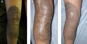 A) NMC mediano con pequeñas áreas de regresión. B) Seguimiento: obsérvese pérdida progresiva de pigmento a predominio folicular. C) Detalle: atrofia folicular. Obsérvese vellos sin pigmento.