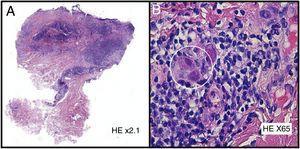 A) Hematoxilina-eosina ×2.1. B) Hematoxilina-eosina ×65.