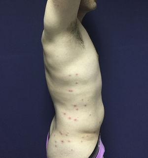 Pápulas y pústulas rodeadas de halo eritematoso ubicadas en la zona lateral de tórax, abdomen y nalgas.