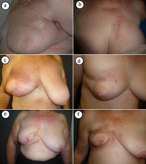 Imagen clínica de los casos de morfea postradioterapia. a) Caso número 1: morfea localizada en parte superior de la mama, cerca de la axila. Placa redondeada indurada, de superficie lisa y color marfil con borde violáceo. b) Caso número 2: morfea localizada en parte superior de la mama. Placa muy indurada sobre zona de radiodermitis. c y d) Los casos números 3 y 4 muestran una morfea en fase inflamatoria que afecta toda la mama. Inflamación con eritema e induración generalizada de la mama, respetando la zona del pezón. e y f) Los casos 5 y 6 muestran una morfea en una fase más residual. Importante retracción mamaria e hiperpigmentación postinflamatoria.
