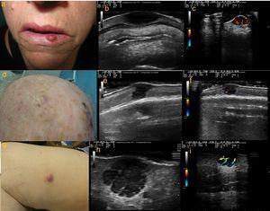 a) Caso 1: lesión eritematosa e infiltrada, de consistencia firme, de 1cm de diámetro en hemilabio inferior izquierdo; b) Modo B: lesión hipoecoica homogénea localizada en dermis, con bordes bien delimitados; c) Modo Doppler color: importante vascularización de predominio en la zona basal; d) Caso 2: nódulo subcutáneo con piel suprayacente de coloración rosada de 8mm de diámetro, localizado en región parietal derecha; e) Modo B: lesión hipoecoica dermoepidérmica; f) Modo Doppler color: señal Doppler leve perilesional; g) Caso 3: nódulo de coloración rosada de 18mm de diámetro en cara interna de muslo derecho; h) Modo B: lesión hipoecoica polilobulada localizada a nivel dermo-hipodérmico, con bordes bien delimitados y refuerzo acústico posterior. En su interior se visualizan septos hiperecoicos; i) Modo Doppler color: vascularización intralesional de predominio en septos.