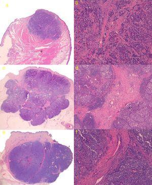a) Caso 1: lesión con patrón sólido de crecimiento con bordes ligeramente espiculados. Hematoxilina-eosina (H&E); b) Detalle de trabéculas fibrosas en forma de tractos finos con escasas estructuras vasculares (H&E ×100); c) Caso 3: tumoración con bordes mejor delimitados y estructura lobulada, con tractos fibrosos que se parece corresponder con las líneas intralesionales hiperecogénicas que se visualizan en la ecografía cutánea en modo B (H&E); d) Detalle de tractos fibrosos gruesos con numerosas estructuras vasculares en su interior (H&E ×40); e) Caso 4: lesión lobulada con tracto fibroso grueso perpendicular a la epidermis, que parece corresponderse ecográficamente con línea hipoecoica visualizada en modo B; f) Detalle de tracto fibroso grueso central con estructuras vasculares de mayor calibre que en el caso 3 (H&E ×100).