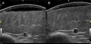 Detalles del estudio ecográfico de la lesión pretibial izquierda: A) A nivel de la zona equimótica se observa una lesión subcutánea anecoica de límite inferior lineal, bien delimitada por una fina seudocápsula (modo B, sonda 13 MHz). B) En la ecografía evolutiva realizada al mes, se aprecia una notable reducción de su espesor.