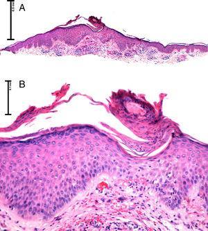 A) Imagen panorámica, presencia de una lámina de paraqueratosis oblicua sobre una epidermis acantósica (H&E ×2). B) A mayor detalle: epidermis con una depresión central asociada a una columna de paraqueratosis oblicua e hipogranulosis (H&E ×4).