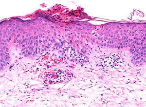 Epidermis acantósica asociada a espongiosis, extravasación eritrocitaria, tumefacción endotelial y daño vacuolar de la capa basal (HE x10).