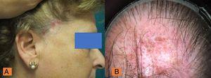 A) Placas atróficas de alopecia con áreas de eritema e inflamación en zona temporal. B) Puntos rojos, parches blancos cicatriciales, capilares ramificados prominentes (megacapilares) y tapones de queratina.