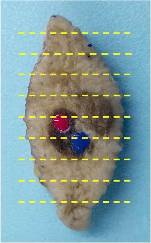Pieza de resección en huso con lesión pigmentada heterogénea en la que se muestran 2áreas marcadas con esmalte ungueal, en colores rojo y azul.
