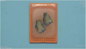 Bloque de parafina con 2fragmentos de tejido. En la superficie de uno de ellos se reconoce el área marcada con esmalte ungueal, que resiste todas las fases del procesamiento y conserva el color original.