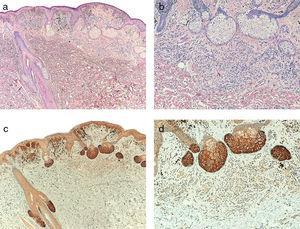 a) Melanoma asociado a nevus intradérmico (H&E; x40). b) Detalle del nevus intradérmico asociado al melanoma (H&E; x100). c) Expresión de telomerasa intensa en las células tumorales del melanoma y leve en las células névicas (x40). d) Detalle de la expresión leve de telomerasa en las células del nevus (x100).