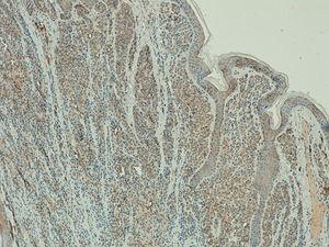 Expresión de telomerasa leve en un nevus melanocítico intradérmico (x100).