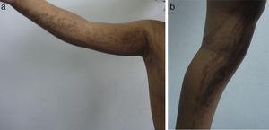Máculas hipercrómicas correspondientes a la etapa III: hiperpigmentada.