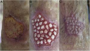 A) Úlcera de 3×2cm en cara lateral del tercio distal de la pierna derecha, de 2 meses de evolución. B) Cobertura con injertos en sello 2 semanas después. C) Epitelización completa a las 3 semanas de la intervención.