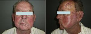 IPN clínica del nervio facial.