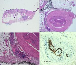 IPN en nervios de calibre inferior a 0,1 mm, pero a distancia del foco principal del tumor.