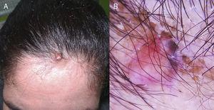A) Nódulo color piel con una pápula de pigmentación azulada en su superficie. B) Dermatoscopia. Área rojo asalmonada, vasos lineales y pigmentación azul homogénea.