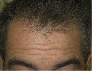 Tumoración de 4 meses de evolución en la línea de implantación capilar de un adulto.