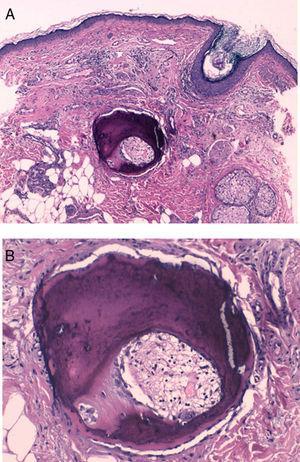 Estudio histológico. A) Hematoxilina-eosina ×40. B) Hematoxilina-eosina ×200.