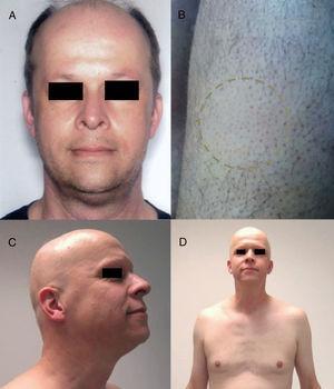 Alopecia areata (AA) universal por alemtuzumab (anti-CD52). A) Aspecto antes del tratamiento. B) Placas iniciales de AA en piernas. C y D) Fase final de AA universal. Fuente: Van der Zwan et al.91.
