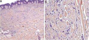 Dermatofibromas múltiples. En el examen histológico se observa la proliferación de células fusiformes a nivel de la dermis, asociadas a una acantosis epidérmica suprayacente (a, H-E ×40). A un mayor aumento se observa que las células fusiformes se entremezclan con haces de colágeno dérmico (b, H-E, ×200).