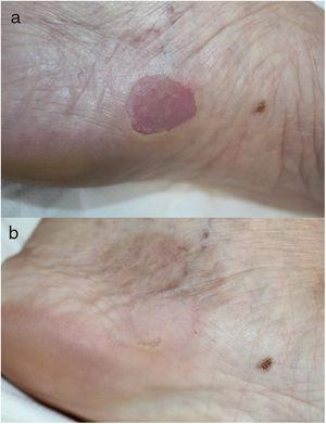 Caso 3. a)Lesión antes de realizar crioterapia. b)La misma lesión 6meses después de realizar crioterapia.