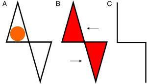 A. Defecto y diseño del colgajo. B. Exéresis de los triángulos y desplazamiento. C. Cierre, línea de sutura.