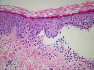 Histología en dermatosis ampollar IgA lineal. La imagen muestra una ampolla subepidérmica con infiltrado inflamatorio de predominio neutrofílico en la dermis (tinción hematoxilina-eosina [H&E]).