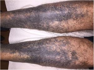 Pigmentación negruzca, de bordes irregulares, bilateral y simétrica en cara anterolateral de ambas piernas.
