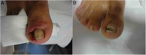 A. Paciente con onicocriptosis severa con hipertrofia del pliegue y granuloma reactivo. B. Resultado a los 3 meses tras 3 infiltraciones de triamcinolona.