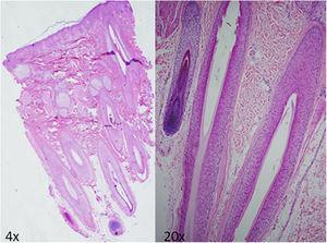 Biopsia del cuero cabelludo que muestra hiperplasia e hipertrofia folicular en piel del cuero cabelludo sin otras alteraciones histológicas reseñables.