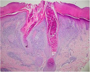 Lobulación de epidermis hacia dermis y queratinocitos con cuerpos de inclusión intracitoplasmáticos (hematoxilina-eosina ×4).