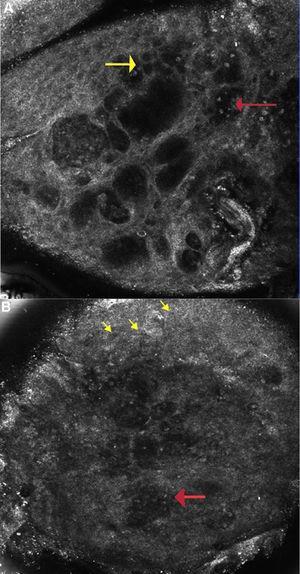 A) Dermatitis alérgica de contacto: imagen de microscopia confocal de reflectancia (0,5×0,5mm) a nivel de la capa espinosa (∼ 30 μs de profundidad) mostrando espongiosis y exocitosis (flecha amarilla) y múltiples microvesículas acompañadas de linfocitos y queratinocitos disgregados (flecha roja). B) Dermatitis irritativa de contacto: imagen de microscopia confocal de reflectancia (0,5×0,5mm): muestra disrupción del estrato córneo con presencia de corneocitos disgregados y paraqueratosis temprana (flecha amarilla) y confluencia de microvesículas con infiltración de células inflamatorias (flecha roja).