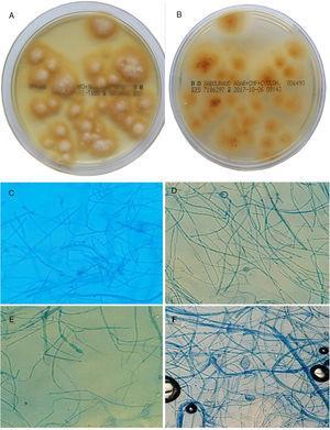 A-B. Cultivo de pelos y escamas en placas de agar Sabouraud cloranfenicol actidiona a los 15 días (28°C). Se observan colonias planas de borde estrellado, con micelio superficial blanco-lanoso en el anverso (A) y de color amarillo-anaranjado pálido en el envés (B). C-F. Morfología microscópica, tras 7 días en agar patata dextrosa.C: hifa pectinada (peine). D: clamidosporas intercalares (20X). E: macroconidio (20X). F: clamidospora terminal de M. audouinii (20X).