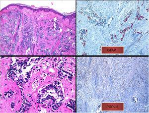 a) Infiltrado difuso en dermis papilar y reticular de células tumorales sin contacto con la epidermis (tinción hematoxilina-eosina, x10). b) Células tumorales de núcleo hipercromático y marcado pleomorfismo (tinción hematoxilina-eosina, x40). c) Inmunohistoquímica positiva para la tinción de proteína glial fibrilar ácida (x40). d) inmunohistoquímica positiva para la tinción de PGP9.5 (x20).