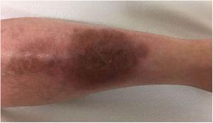 Lesión residual en pierna izquierda tras tratamiento con ustekinumab y ciclosporina durante 12 semanas.
