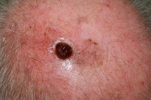 Melanoma nodular amelanótico de rápido crecimiento en la sien izquierda, ulcerado, en paciente varón de 87 años de 4 meses de evolución, índice de Breslow de 7mm y 8 mitosis por mm2.
