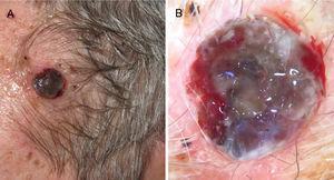 A) Melanoma nodular de rápido crecimiento en 4 meses en la sien izquierda con índice de Breslow de 4mm, ulcerado y presencia de 10 mitosis por mm2. B) Dermatoscopia de la lesión donde se observan varios colores y pequeñas áreas lechosas con vascularización atípica.
