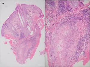 A y B Tinción: hematoxilina eosina. Aumentos: 10x/20x.