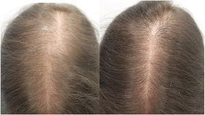 A) Mujer de 33 años con alopecia androgénica femenina antes del inicio del tratamiento con minoxidil oral 1mg/día. B) A los 12 meses de tratamiento.