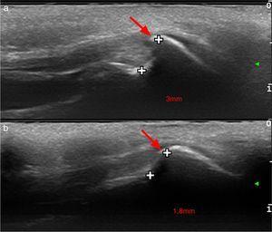 Ecografía de alta resolución con sonda de 22MHz del área occipital en sección longitudinal de los 2 pacientes presentados. La protuberancia occipital externa tipo 3 o en espina/espolón está indicada con una flecha y la distancia entre el hueso occipital y la exostosis, medida en milímetro. También podemos observar el desplazamiento superior de las capas músculo-aponeuróticas adyacentes, constituidas por el ligamento nucal, las fibras de inserción del músculo trapecio y la aponeurosis epicraneal.
