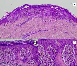 Nevo de Spitz intraepidérmico. Aunque la mayoría de los NS son compuestos, una pequeña proporción de ellos pueden estar limitados a la unión dermoepidérmica. Las características citológicas, no obstante, son similares a las del NS compuesto. A) A poco aumento destaca una lesión intraepidérmica compuesta por grandes tecas de células névicas fusiformes. B) y C) A mayor aumento puede apreciarse la celularidad fusocelular sin atipia y con escaso pigmento melánico citoplasmático, así como la presencia de cuerpos de Kamino.