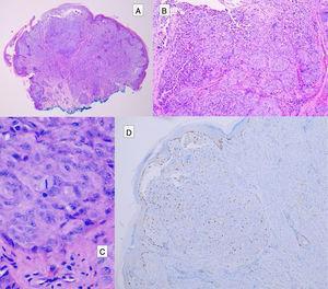 Tumor spitzoide. A) Proliferación de melanocitos epitelioides que muestra una zona nodular central, que contiene melanocitos atípicos (B) y frecuentes mitosis (C). La zona nodular central presenta una expresión aumentada de Ki67 (D).