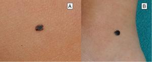 Características clínicas del nevo de Reed o nevo pigmentado de células fusiformes. A y B) Lesión melanocítica muy pigmentada, de tonalidad entre marrón oscura y negra.
