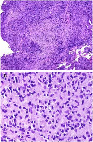 A)A bajo aumento, la enfermedad IgG4-relacionada debe sospecharse por la coexistencia de un infiltrado rico en células plasmáticas con áreas de fibrosis concéntrica (H&E ×40). B)Infiltrado rico en células plasmáticas en un caso de enfermedad IgG4-relacionada (H&E ×400).