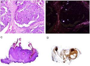 A)Reacción granulomatosa epitelioide sarcoidea en la dermis en un caso de granuloma por sílice (H&E ×100). B)En el examen de los granulomas sarcoideos con luz polarizada se observan numerosas partículas intensamente birrefringentes (H&E ×100, luz polarizada). C)Ejemplo típico de un tricolemoma (H&E ×20); incluso a este aumento se pueden ver las vacuolizaciones citoplásmicas celulares características. D)Preservación de la expresión de PTEN en un tricolemoma esporádico, no asociado a síndrome de Cowden (PTEN ×20).