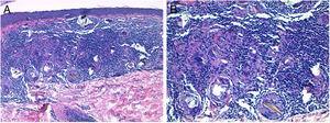 Imágenes histopatológicas. A)En dermis superficial, infiltrado granulomatoso no necrosante (hematoxilina-eosina, ×10). B)Histiocitos epitelioides y material cristalino birrefringente fagocitado por células gigantes multinucleadas (hematoxilina-eosina, ×20).