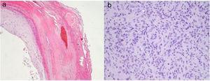 a)Hematoxilina-eosina (HE) ×20: focos de hemorragia en el estrato córneo de la epidermis. b)HE ×40: en el centro de la imagen se observan células mioides siguiendo una distribución perivascular.