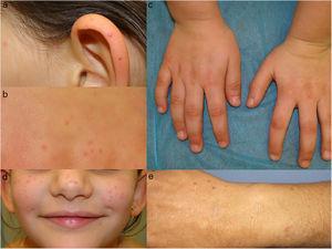 Lesiones papulosas eritematovioláceas, con halo periférico blanquecino en la paciente de 7 años (a-d). Paciente 2 con lesiones eritematosas en antebrazos (e).