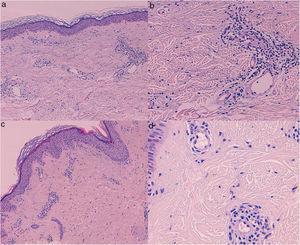 Biopsias cutáneas (hematoxilina-eoxina) de las pacientes 1 (a, b) y 2 (c, d); a, c (40×). Dilatación de los vasos dérmicos superficiales, con un discreto edema dérmico e infiltrado inflamatorio perivascular, sin presentar vasculitis, proliferación capilar ni extravasación eritrocitaria; b, d (200x). Células endoteliales que protruyen hacia el espacio vascular junto al infiltrado perivascular.