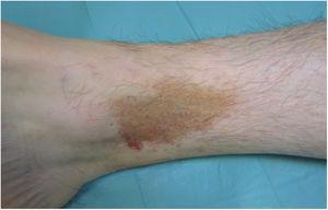 Liquen aureus. Lesión única en extremidad inferior en forma de placa formada por la confluencia de pequeñas máculas amarillo-anaranjadas.